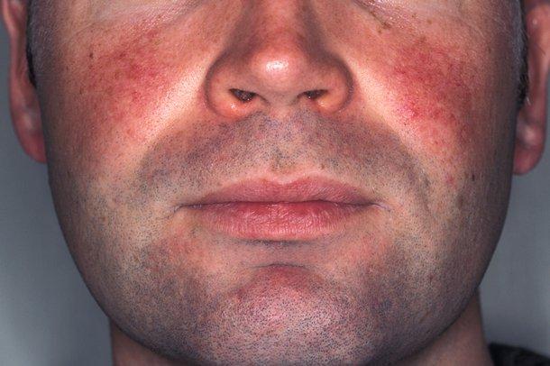 Диабет на лице у взрослых