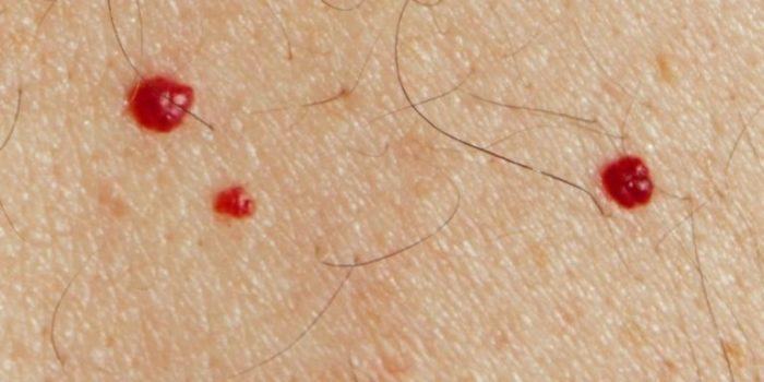Иногда на теле появляются красные точки, похожие на родинки