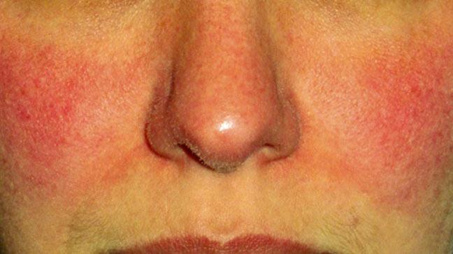 Покраснение и шелушение лица может проявляться по разным причинам