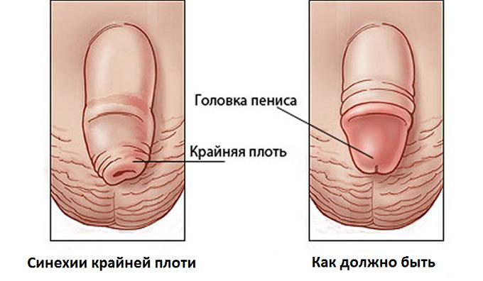 Фимоз лечится хирургическим способом
