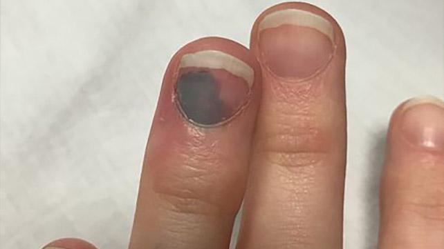 Синяк под ногтем вызывает сильные болевые ощущения