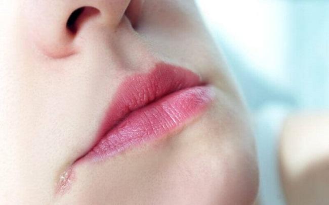 Трещинки в уголках рта причиняют болезненные ощущения