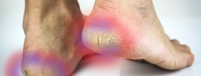 Трещины на пятках ног появляются по разным причинам