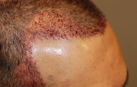 Псориаз и себорея - главные причины красных пятен