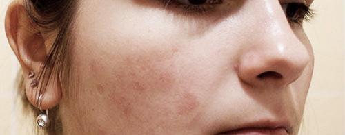 Аллергический диатез у взрослых