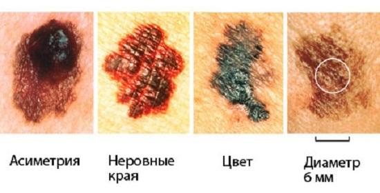 Priznaki-melanomy