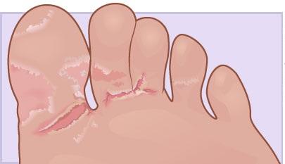 Почему лезет кожа между пальцев ног