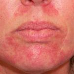 Шелушение и покраснение кожи на лице лечение 37