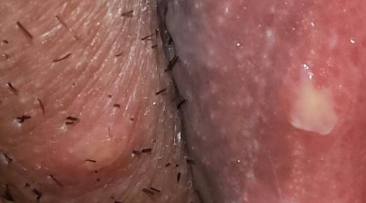 Язвочка на половой губе но не сифилис