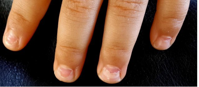 Отслойка ногтевых пластин диагностируется по разным причинам