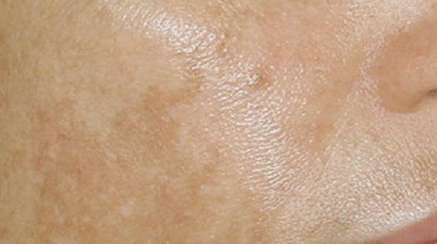 Коричневые пятна на коже - почему появляются на теле такого цвета - что это, чем лечить, если они шелушатся или чешутся