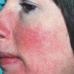 Шелушение и покраснение кожи на лице лечение 39