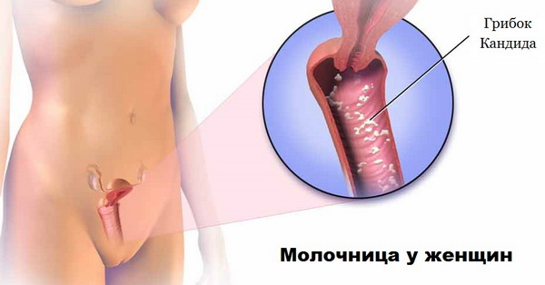 Генитальный кандидоз провоцируют грибки Кандида
