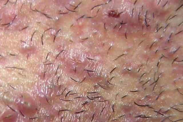Интимная зона зачастую воспаляется после бритья