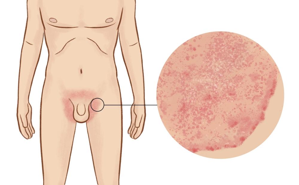 Как меняются свойства кожи пораженной псориазом