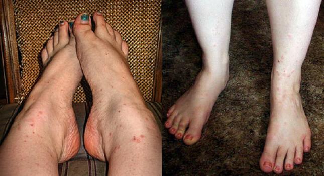Сыпь в виде комариных укусов чешется у взрослого фото