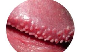 красное блестящее пятно на стволе полового члена