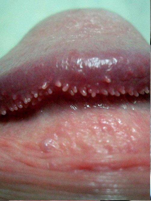 пятнышко розоватого цвета на пенисе