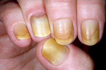 Ногти могут отходить от кожи на руках по разным причинам