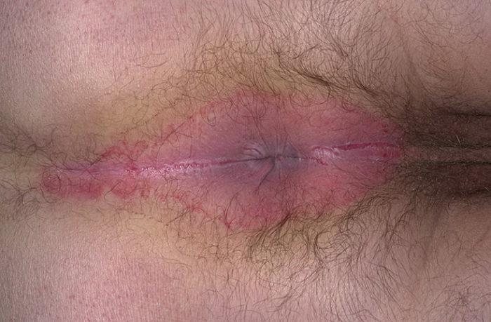 воспаление промежности при натертости