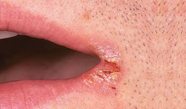 Как вылечить трещины в уголках рта быстро