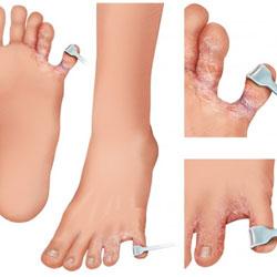 Чем мазать трещины на пальцах ног