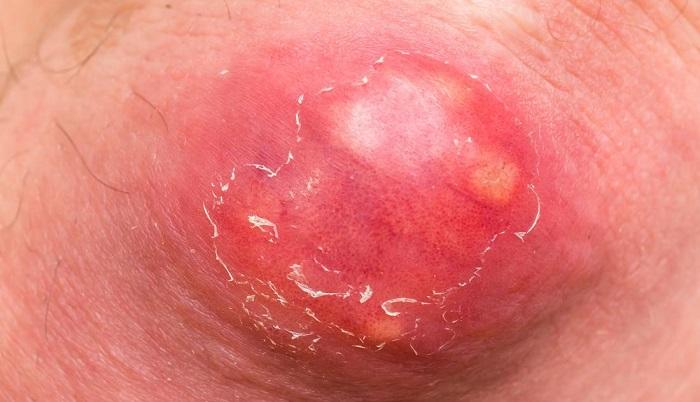 Фурункулез - это гнойно-воспалительный процесс
