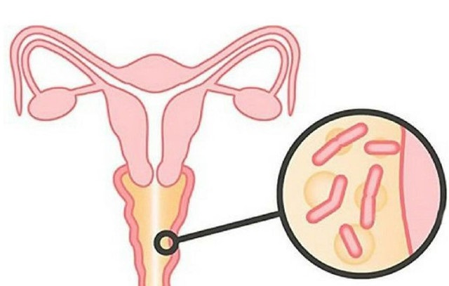 секси микроорганизмы живущие в женской вагине расмотрим ряд