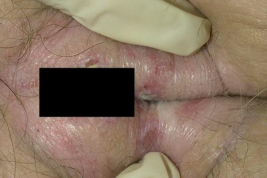 Отек половых губ фото