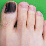 Темнеют ногти на ногах большого пальца причина 5