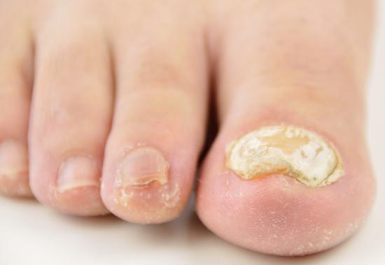 Темнеют ногти на ногах большого пальца причина 4
