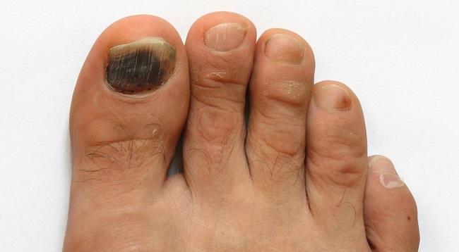 Потемнение ногтей обычно вызвано грибками