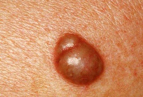 Шарики в паху у мужчин и женщин бывают вызваны многими заболеваниями