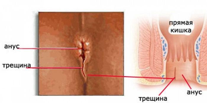 Трещины могут появиться после родов