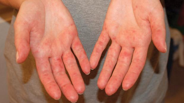 Сыпь у ребенка на руках и ногах чешется фото чем лечить
