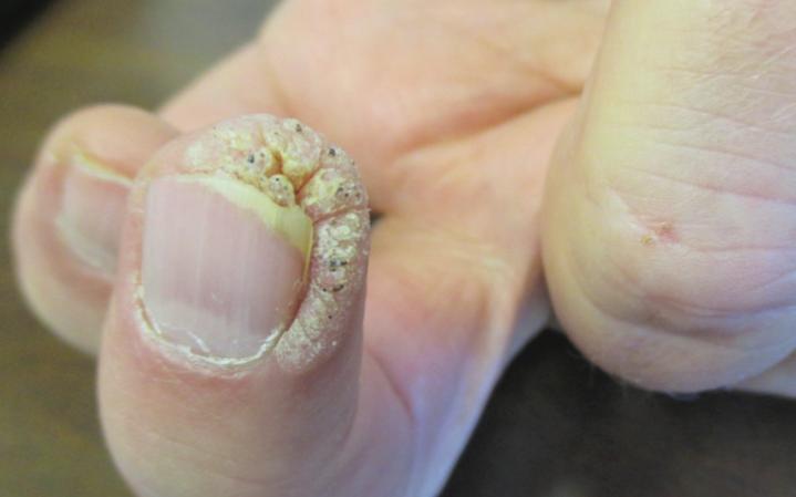 Бородавка под ногтем поддается оперативному удалению