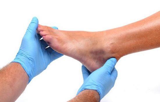 Когда болит кожа ноги