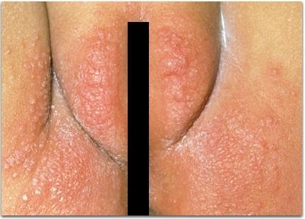 Контактный дерматит на лобке