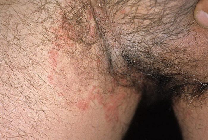 Дерматит в паху - частое заболевание среди мужчин и женщин