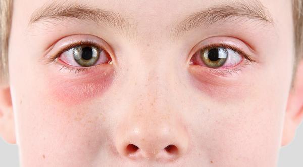 Что делать когда кожа вокруг глаз покраснела thumbnail