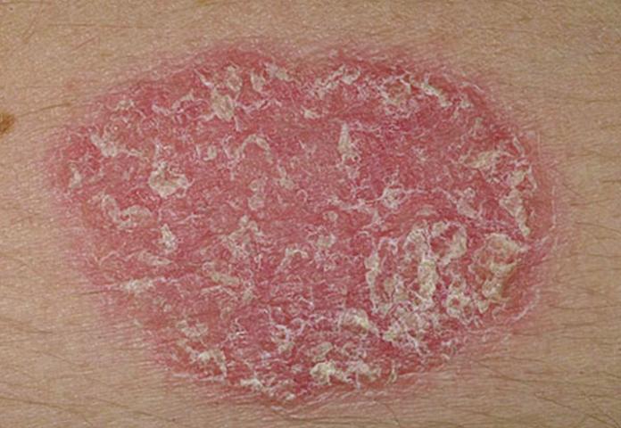 Красное пятно может появиться из-за сбоя работе организма