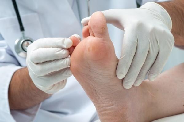 Опух большой палец ноги у ногтя