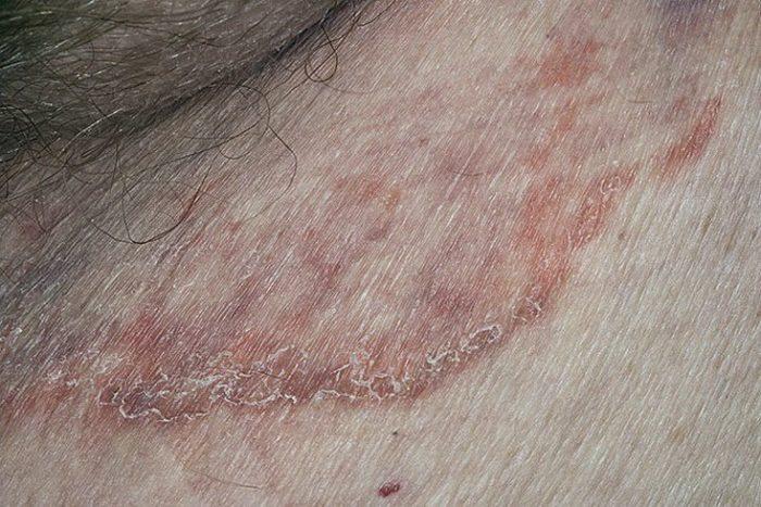 Микозом можно болеть много раз в жизни