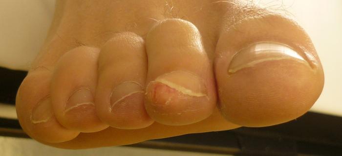 Нарост под ногтем появляется на ногах и руках