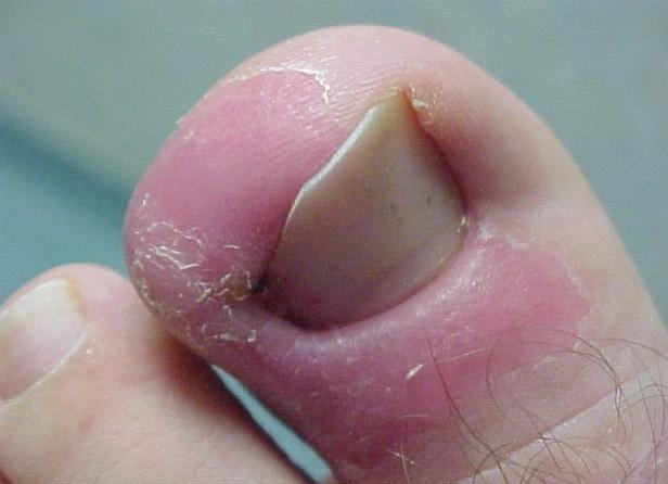 Нарыв на ноге около ногтя вскрывается хирургом