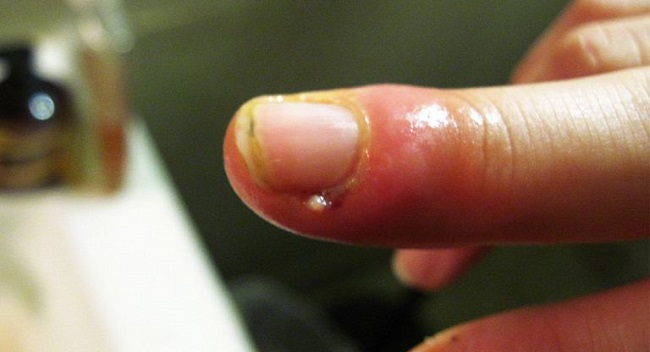 При нарыве пальца нужно обратиться к хирургу