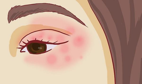 Кожа вокруг глаз - очень нежная, поэтому часто подвергается агрессивной окружающей среде