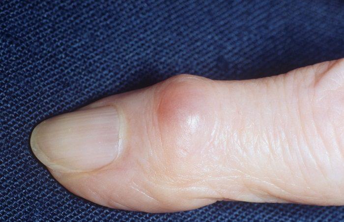 Шишка на суставе пальца руки встречается чаще у пожилых людей