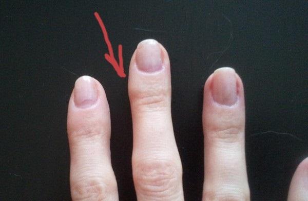 На пальце руки появился бугорок похожий на мозоль