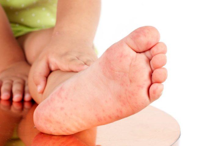 Сыпь на стопах может появиться из-за аллергии